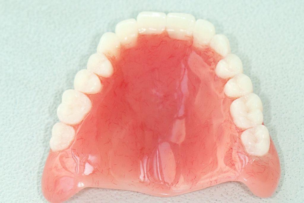 Полный зубной протез на имплантах
