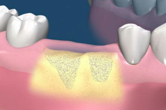 Наращивание кости для имплантации