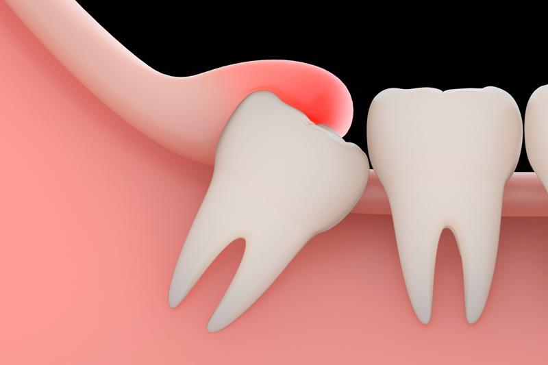 ретинированный и дистопированный зуб