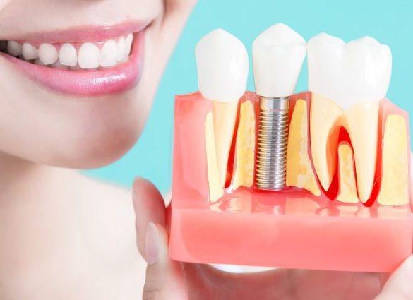 Имплантация зубов - акции и скидки в СПб