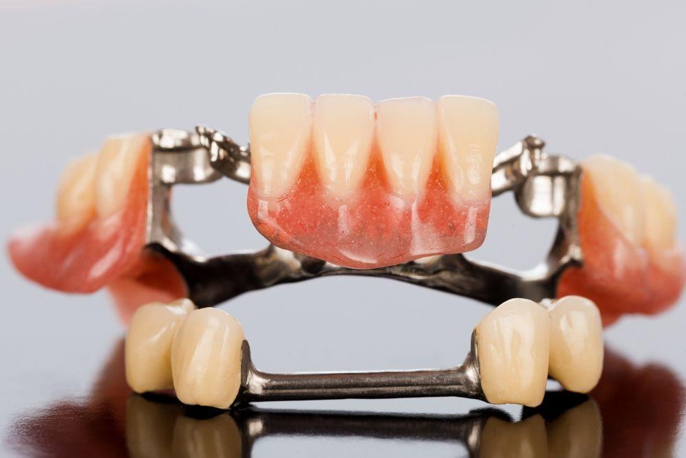 Бюгельные зубные протезы