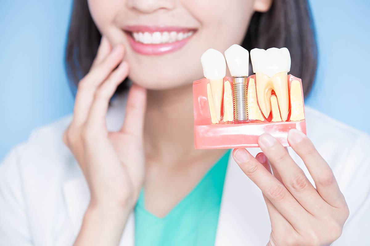 Зубные импланты в СПб под ключ