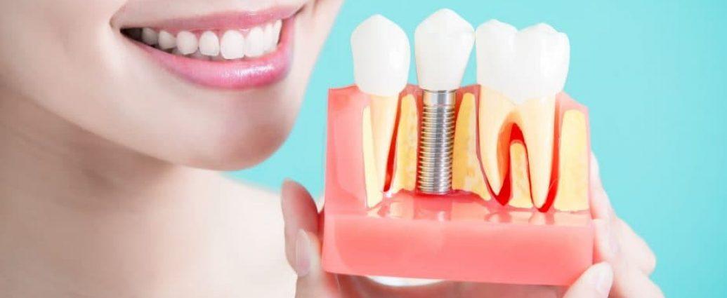 Акции на имплантацию зубов