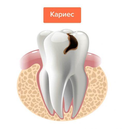 Лечение кариеса зубов в Спб